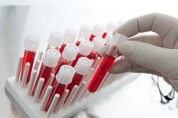 Анализ крови при пневмонии у беременных