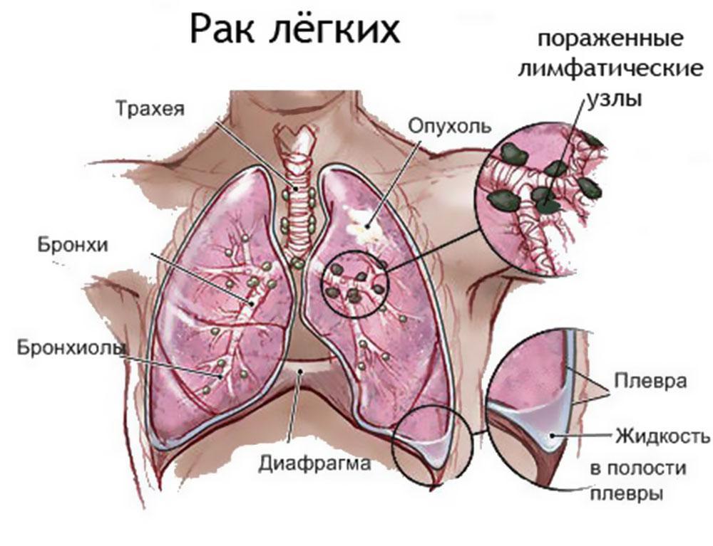 Сколько живут с пневмофиброзом