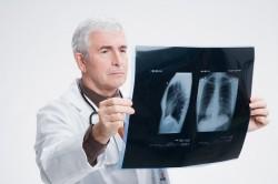 Диагностика экссудативного плеврита на рентгене