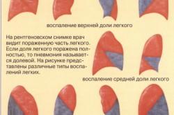 Варианты воспаления легких