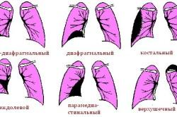 Типы плеврита