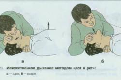 """Искусственная вентиляция легких методом """"рот в рот"""""""