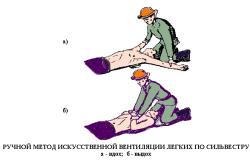 Искусственная  вентиляция по методу Сильвестра