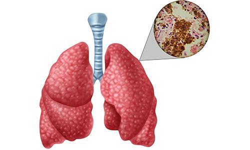 Легкие с туберкулезом под микроскопом
