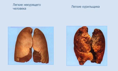 Очистить легкие после курения в домашних условиях 393