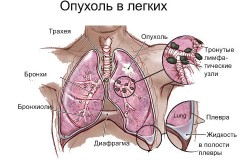 Схема рака легких