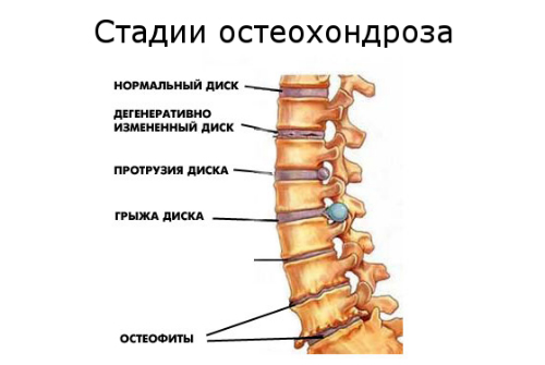 Болит суставы в коленях