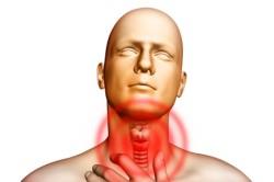 Боль в горле - симптом бронхита