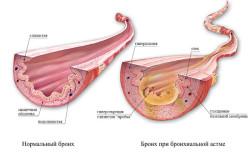 Нормальный бронх и при бронхиальной астме