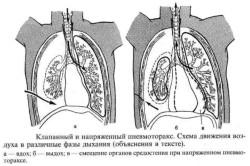 Клапанный и напряженный пневмоторакс