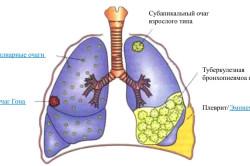 Виды заболеваний легких