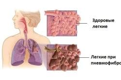Схематичное изображение ткани легких в норме и при пневмофиброзе