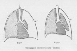 Схема открытого пневмоторакса