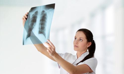 Проблема туберкулеза легких