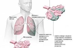 Пневмосклероз легких у человека