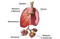 Пневмония - причина проведения бронхоскопии легких