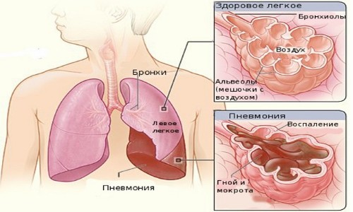 Схема долевой пневмонии