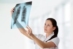 Рентгенография перед проведением бронхоскопии легких