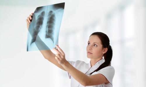 Обнаружение эмфиземы легких на рентгене