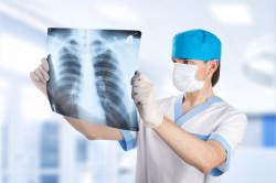 Рентген для диагностики абсцесса легкого