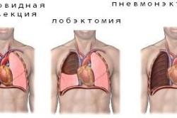 Резекции при туберкулезе легких