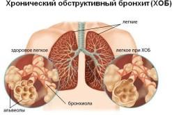 Схема хронического обструктивного бронхита